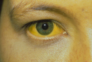 yellow-eyes-and-skin_1